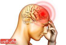 تصویر از ۴ درمان طبیعی سردرد